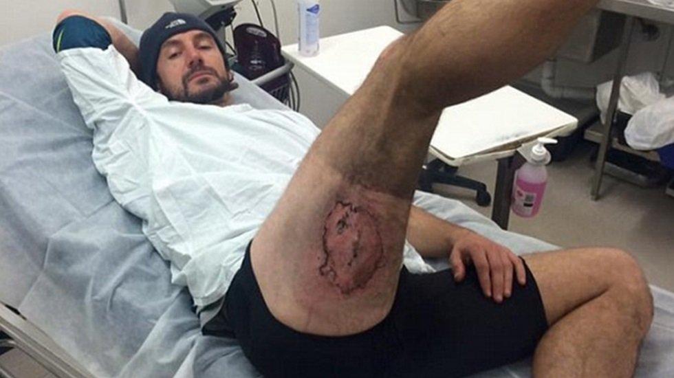 Imagem de Celular que explodiu no bolso de trás e queimou homem na bunda